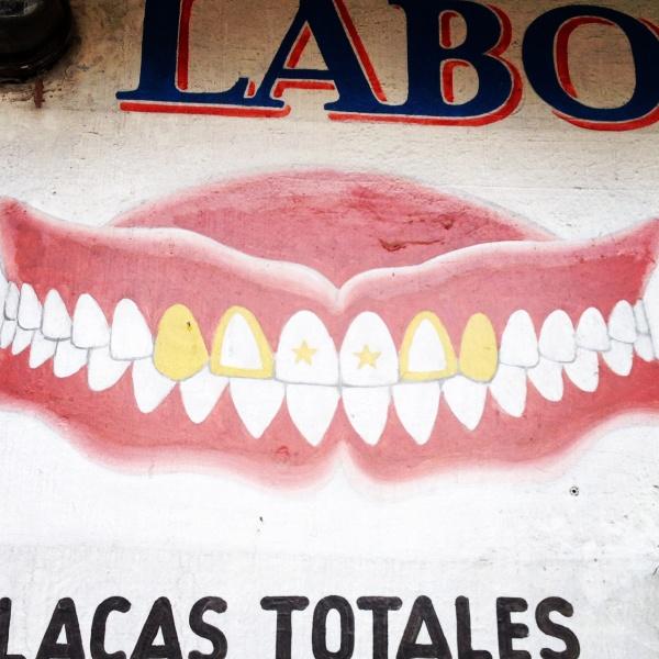 140629_incrustaciones-dentales-oro-luis-figueroa-luisfi